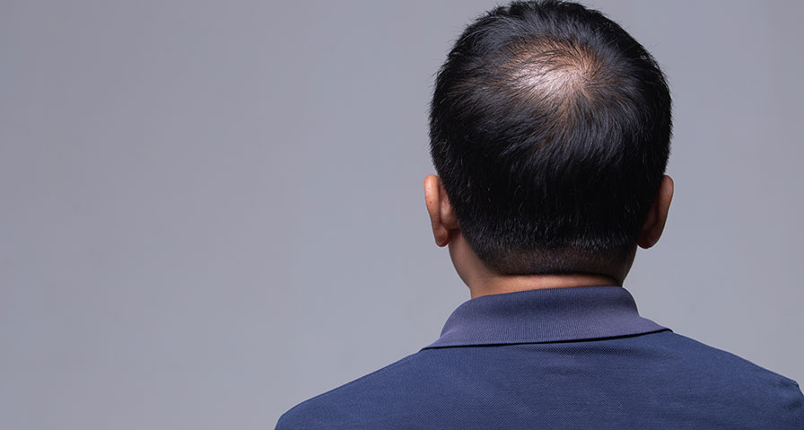 Frågor om hårtransplantation